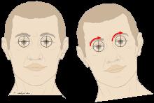 Vestibulo-ocular_reflex_lateroflexion_of_neck